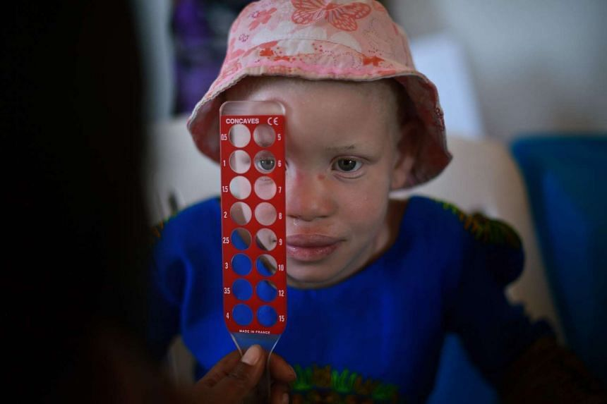 An albino girl has her eyes tested at a clinic run by the Standing Voice NGO, on Ukerewe Island in Victoria lake during International Albinism Awareness day on June 13, 2016.