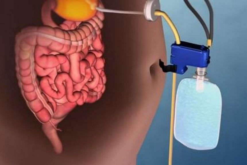 An illustration of how the AspireAssist device works in pumping food out of the stomach.