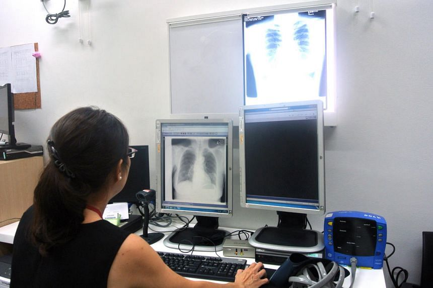 A doctor at Tan Tock Seng Hospital's Tuberculosis Control Unit examining an X-ray of a TB patient's lungs in 2015.