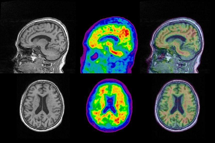 An MRI scan (far left) shows brain structure, while a PET scan (centre) lets researchers see amyloid presence in red. Combining the two images (left) could help doctors find out which parts of the brain have a build-up of the protein linked to Alzhei