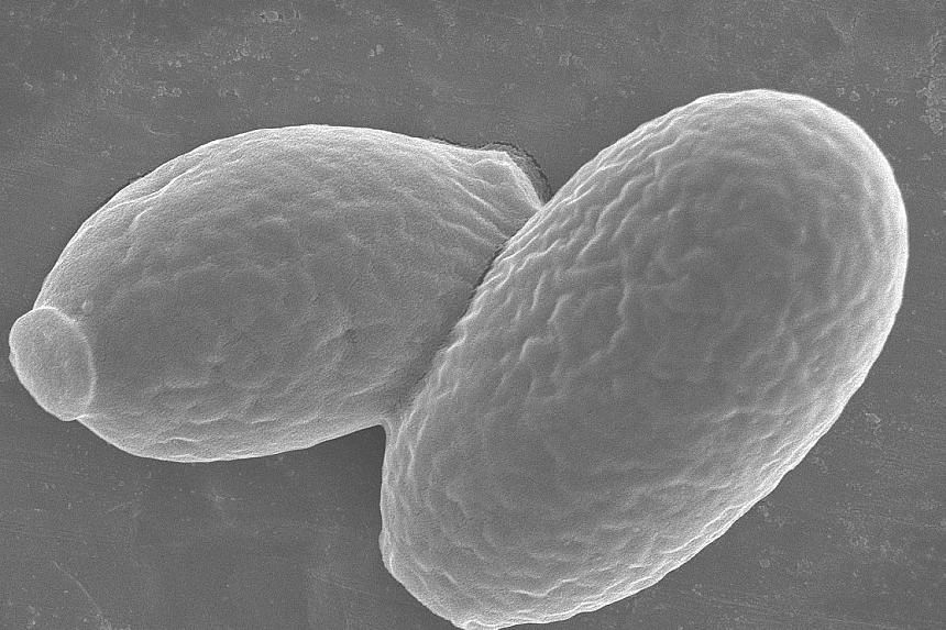 Above and far left: Yarrowia lipolytica yeast cells. Prof Chang led team that came up with the novel way to cut incineration of food waste.