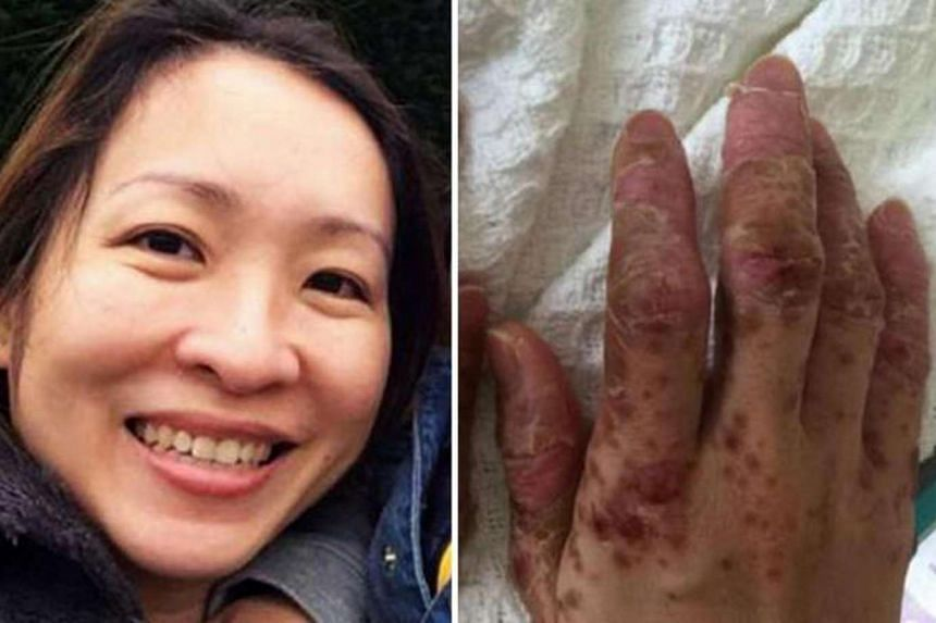 Hand, foot and mouth disease (HFMD) numbers are at their highest in four years. One mother, Ms Glynisia Yeo, caught it from her son and spent 10 days in hospital. Her bout with HFMD saw her losing her fingernails, toenails and hair.