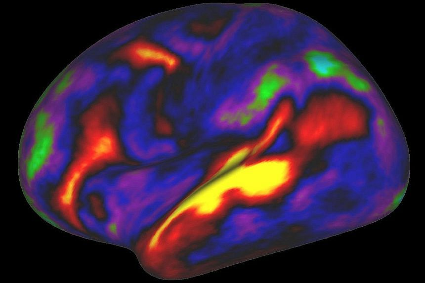 An image showing the pattern of brain activation (red and yellow) and deactivation (blue and green) in the brain's left hemisphere when listening to stories in the MRI scanner.