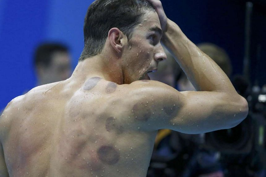 Michael Phelps (USA) of USA is seen with red cupping marks on his shoulder as he competes.