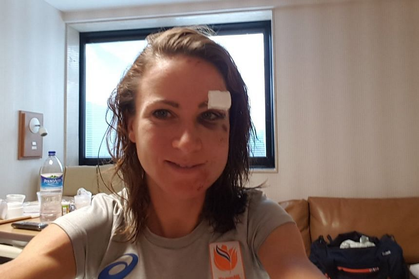 Van Vleuten tweeted thsi picture of her swollen and bruised face to assure fans she was fine.