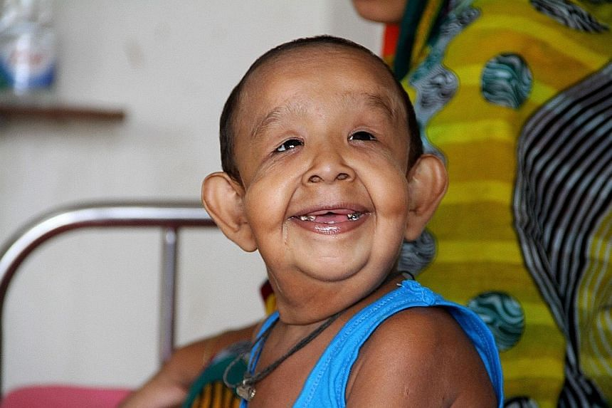 Four-year-old Bayezid Shikdar at Dhaka Medical College Hospital on Sunday. Born with excess skin that hangs from his limbs and face causing it to sag, he also suffers from related heart, vision and hearing problems.
