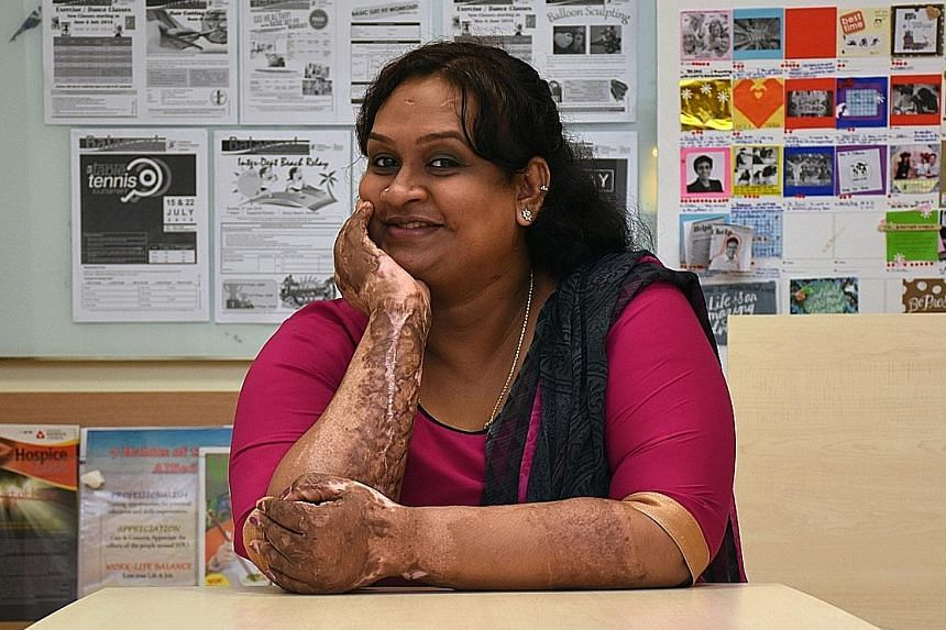 Burn victim Joena Shivani has had nine operations since her accident last year but the recovery process is still far from over. Talking to support groups and other burn survivors has helped her deal with the trauma as well as the isolation that many