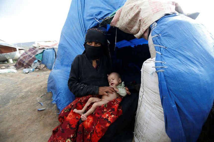 A woman holds her malnourished son next to their tent at a camp for internally displaced people near Sanaa, Yemen on Monday (Aug 15).