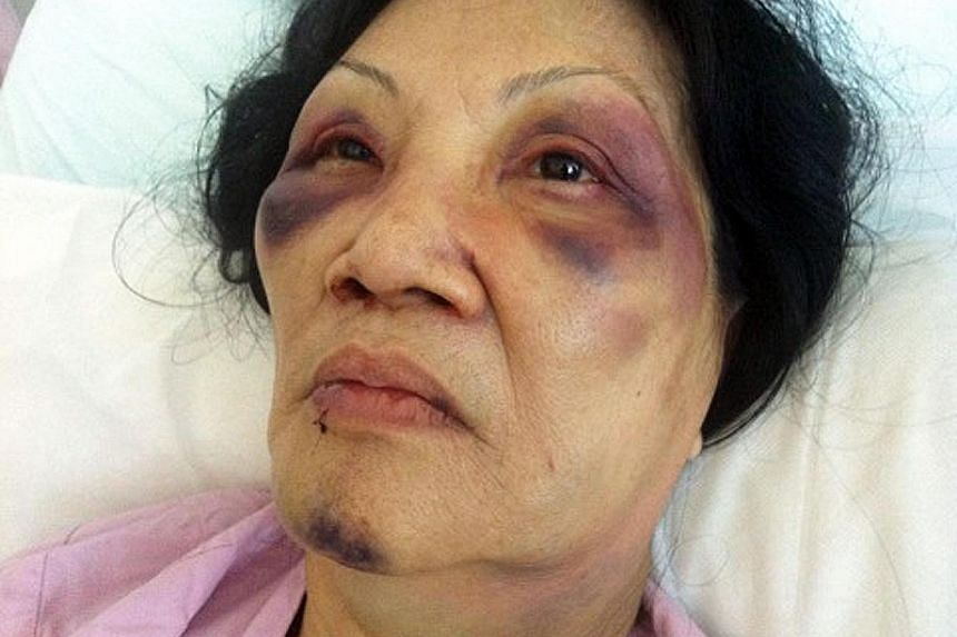 Ng's attack on Madam Toh in September 2013 was captured on a security camera outside Madam Toh's flat. Video footage showed Ng choking her neighbour, forcing her to kneel and stamping on her head. The elderly woman was also grabbed by the hair and fl