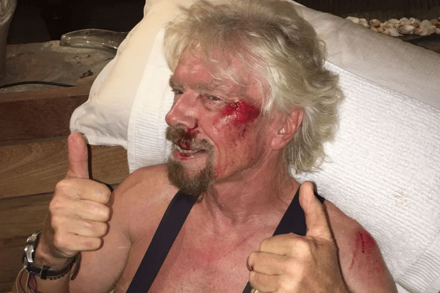 Billionaire Richard Branson suffered torn ligaments and a cracked cheek after an accident in August 2016.