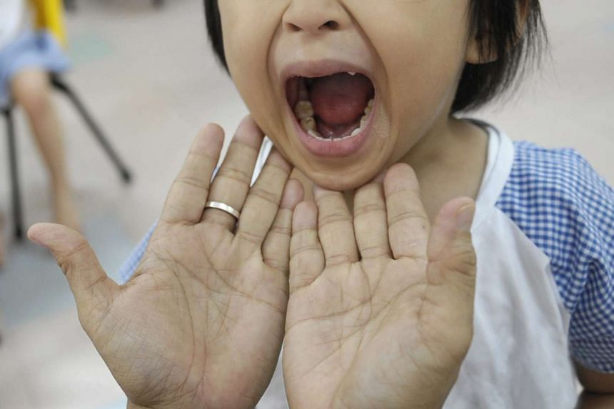 A child gets her mouth checked for HFMD.