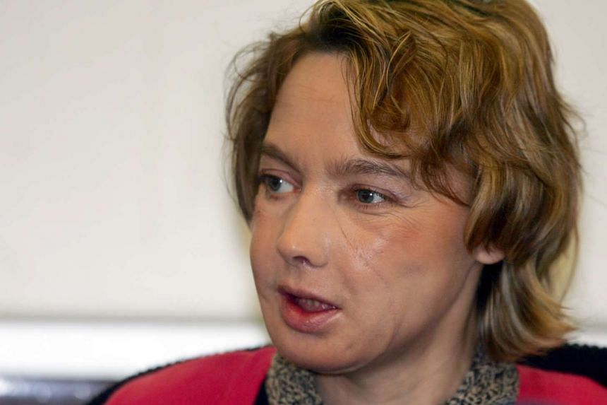 A 2006 photo shows Isabelle Dinoire, the woman who received the world's first facial face transplant in Amiens, northern France, speaking during a press conference.