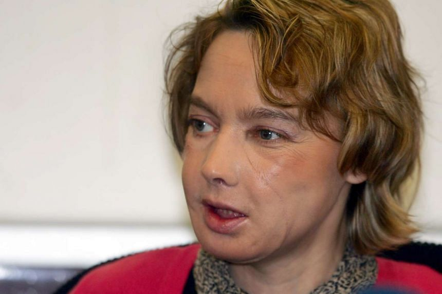 Ms Isabelle Dinoire, who was the first person to receive a face transplant, died on Sept 6, 2016.