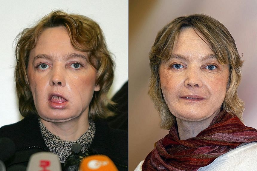 Mrs Dinoire in February 2006 (left) and November 2006, after receiving a graft comprising the nose, lips and chin in 2005.