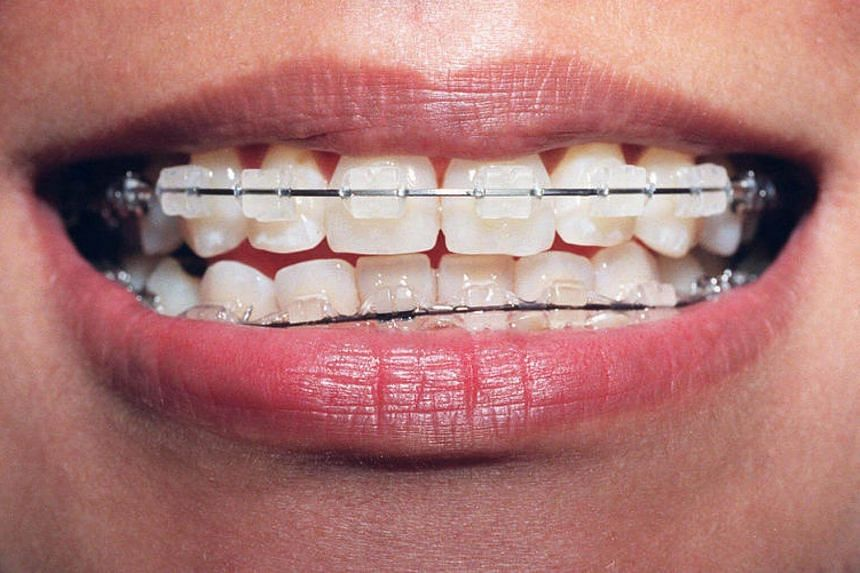 A teen girl went to have braces done and ended up with all her teeth glued together at a quack dentist in Malaysia.