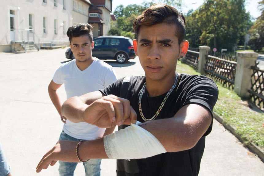 A Moroccan asylum seeker shows off a cut he received during the violent attacks in the German town of Bautzen.
