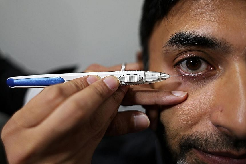 The treatment under trial now involves painlessly injecting a 1mm pellet, via a pen-like device, into a patient's eyeball. The injection takes around 10 seconds, is painless and does not damage the eyeball.