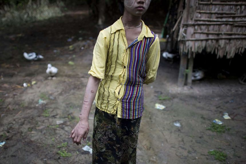 A 17-year-old Myanmar child slave shows her scarred arms and twisted fingers whilst recovering in her family's village in Baw Lone Kwin, Kawmu township.
