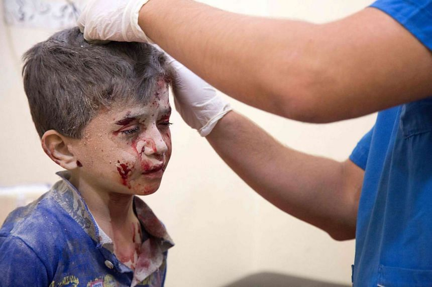 A Syrian boy receives treatment at a makeshift hospital following air strikes on rebel-held parts of Aleppo on Sept 24, 2016.