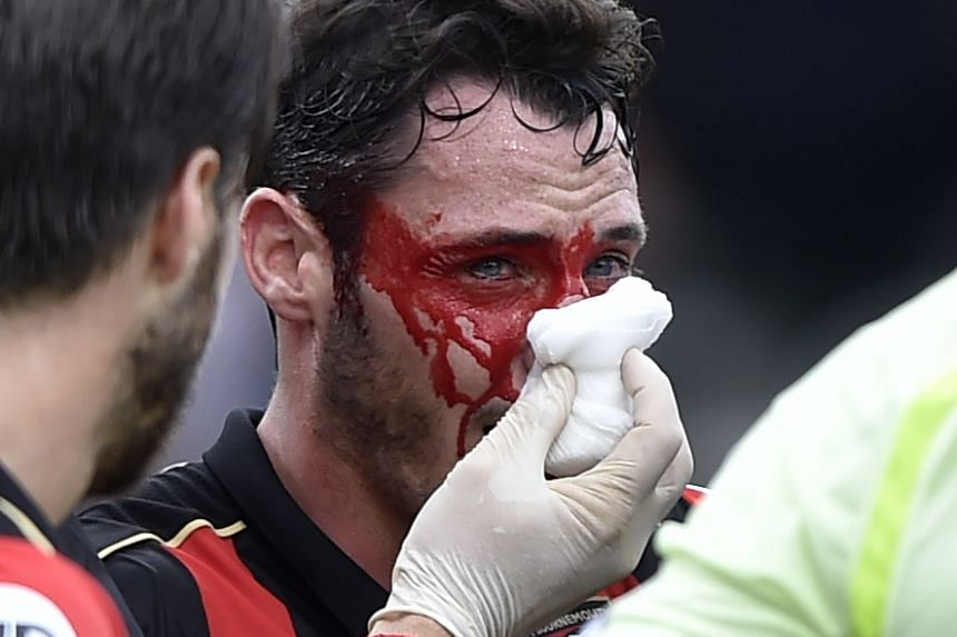 Bournemouth's Adam Smith with an injury to his face.