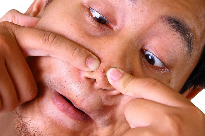 Squeezing a pimple may push the infection deeper, making it worse and causing permanent scarring.