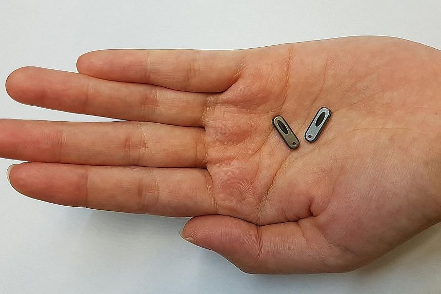 The av-Guardian is a tiny titanium implant that sits under the skin, helping nurses to slip in a needle exactly the same way each time. This way, the rest of the vein is kept intact.