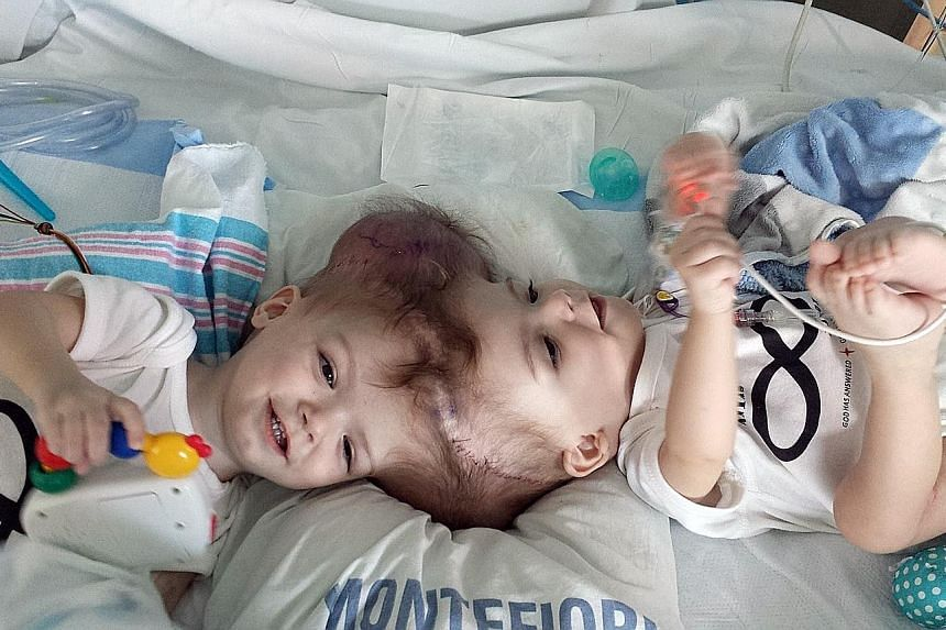 Left: 13-month-old twins Jadon and Anias McDonald before they underwent 16-hour surgery. Above: Jadon recovering after the procedure. Although the surgery was a success, the outlook for the brothers' health remains unclear