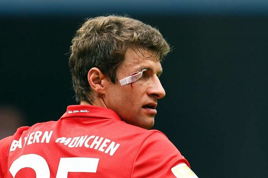 Munich's Thomas Mueller bleeds following a tackle.