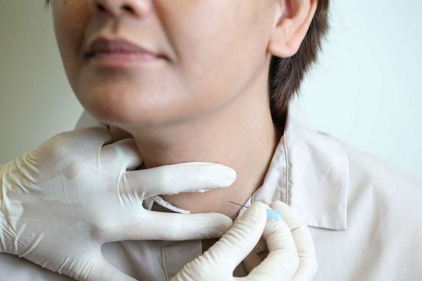 A pathologist showing how a very small needle is used to collect a sample of cells from the thyroid nodule.