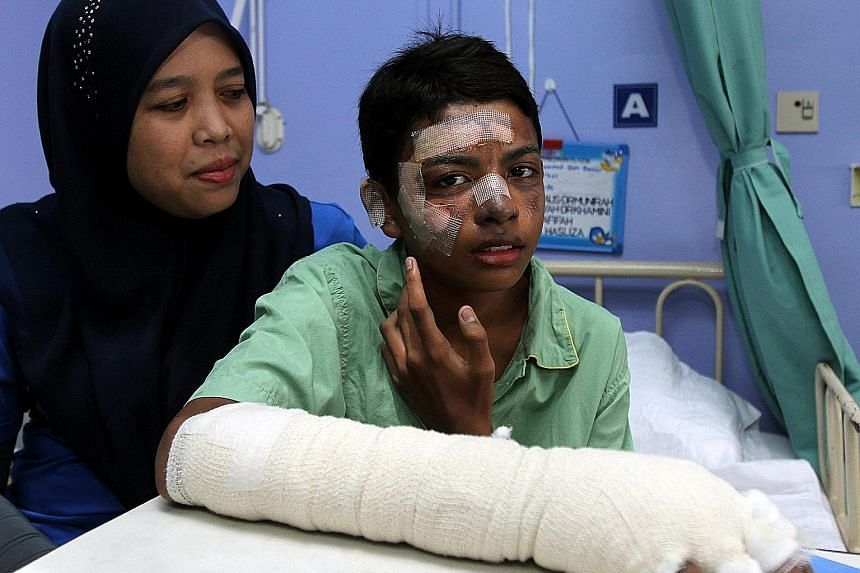 Top: Mohammad Faiz Daniel Mohd Sufian with his mother Zuwati Mat Ali. The 12-year-old boy suffered burns to his face after the balloon disaster in Terengganu last Friday. Above: Also hospitalised was Nur Batrisya Balqis Othaman, 11, here being comfor