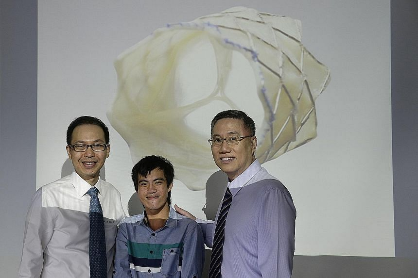 """Mr Cheng flanked by Dr Tay (left) and Associate Professor Quek, with a projection of the valve that has been implanted into the patient via a minimally invasive procedure. """"The procedure wasn't painful and I can resume my normal activities now,"""" said"""