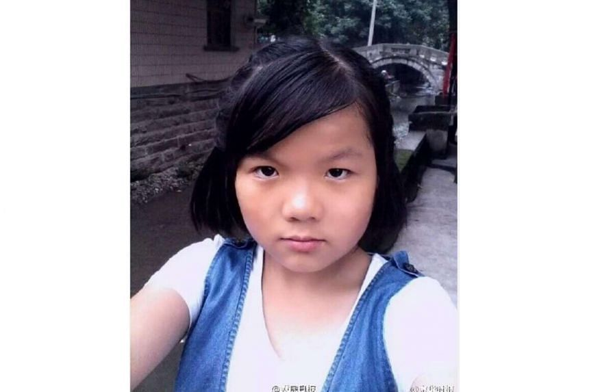 Jiajia, 14, suffered 79 per cent burns on her body while trying to rescue her dad from her burning house in Chongqing, China.