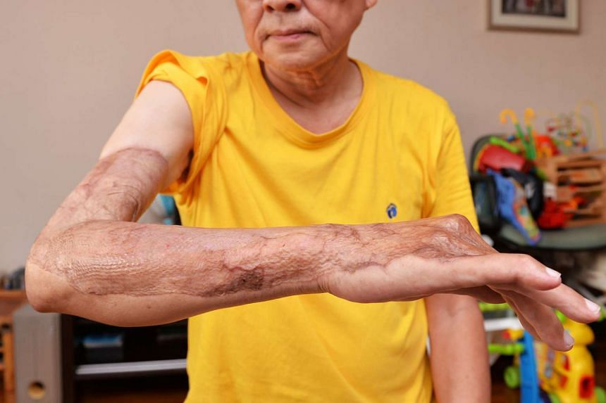 Mr Huang showing the part of his arm where the flesh-eating disease attacked. He had to undergo blood transfusions and skin grafts.