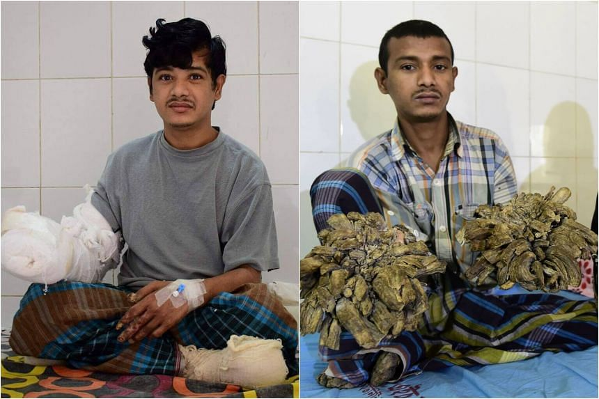 Bangladeshi man Abul Bajandar in a ward at The Dhaka Medical College Hospital in Dhaka, on Jan 4, 2017 (left), and Jan 31, 2016 (right).