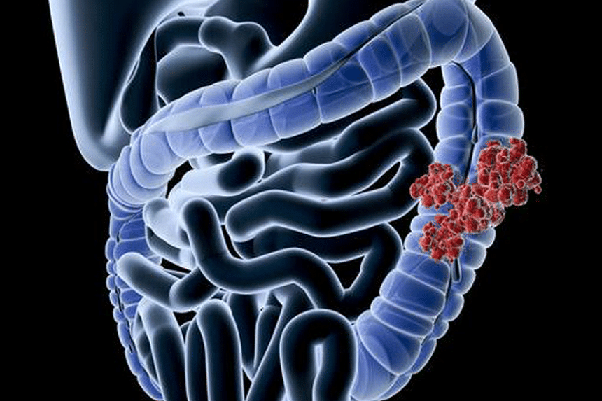 An X-ray diagram showing the cancer cell growth at the colon area of the large intestine.