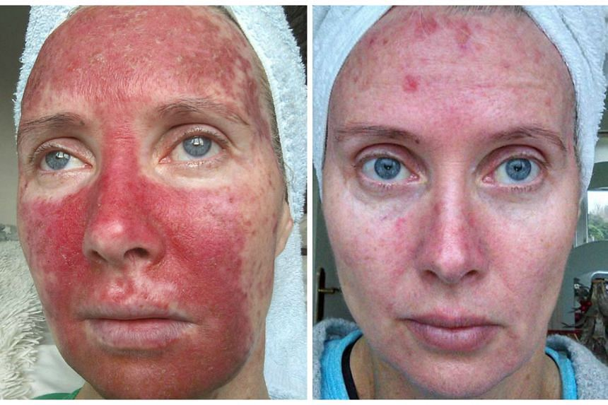 Margaret Murphy in a Jan 22 photo (left) and earlier in her treatment (right) on Jan 8.