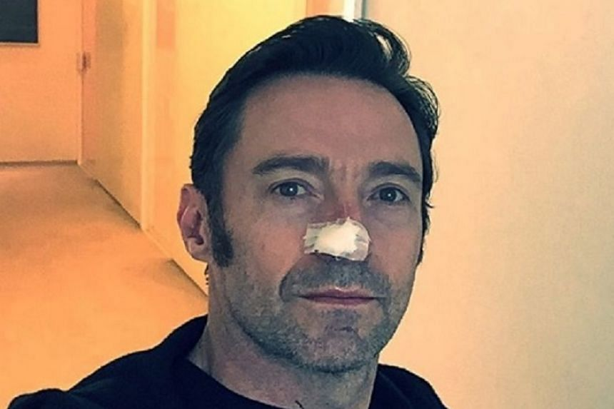Hugh Jackman posted a picture of himself on Instagram with his nose covered in plasters.