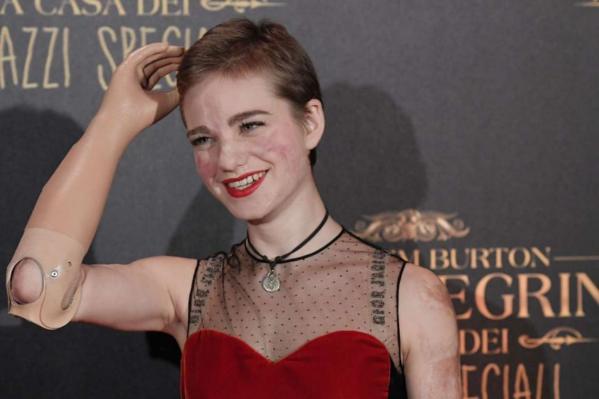 Beatrice Vio attends a movie premiere in Rome on Dec 5, 2016.