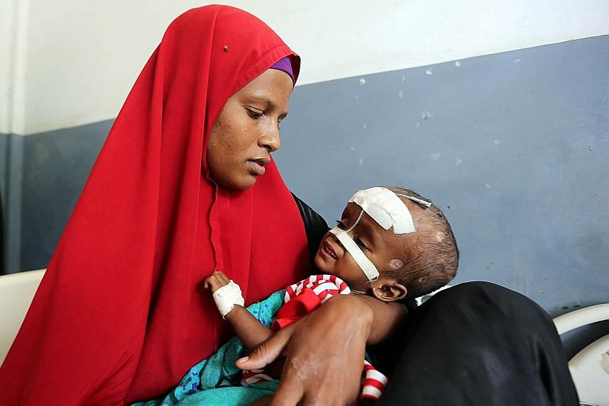 An internally displaced Somali woman holds her malnourished child fitted with a nasogastric tube inside a ward dedicated for diarrhoea patients at the Banadir hospital in Somalia's capital Mogadishu, on March 5. About 6.2 million people in the countr