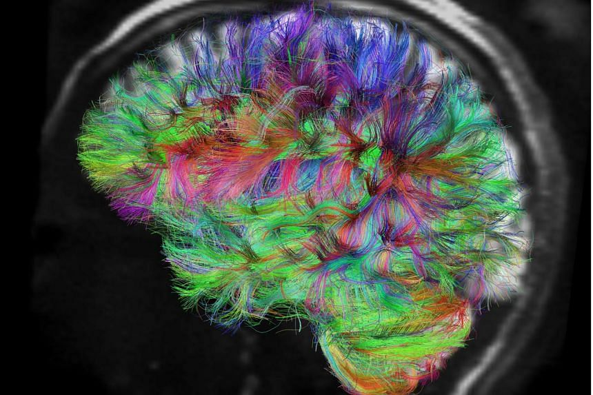 Nerve fibres of a brain mapped using diffusion spectrum magnetic resonance imaging.