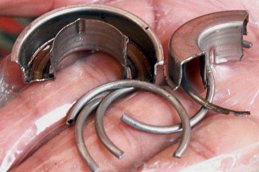 The ball bearing metal cut off from the man's penis at Penang Hospital.