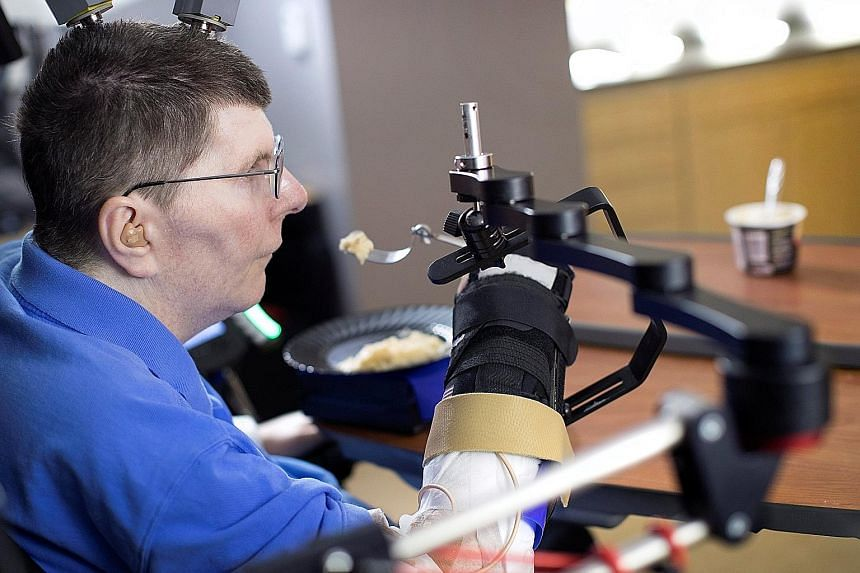 Using a brain interface system, Mr Kochevar, who was paralysed below his shoulders in a cycling accident eight years ago, is now able to move each joint in his right arm individually, just by thinking about it.