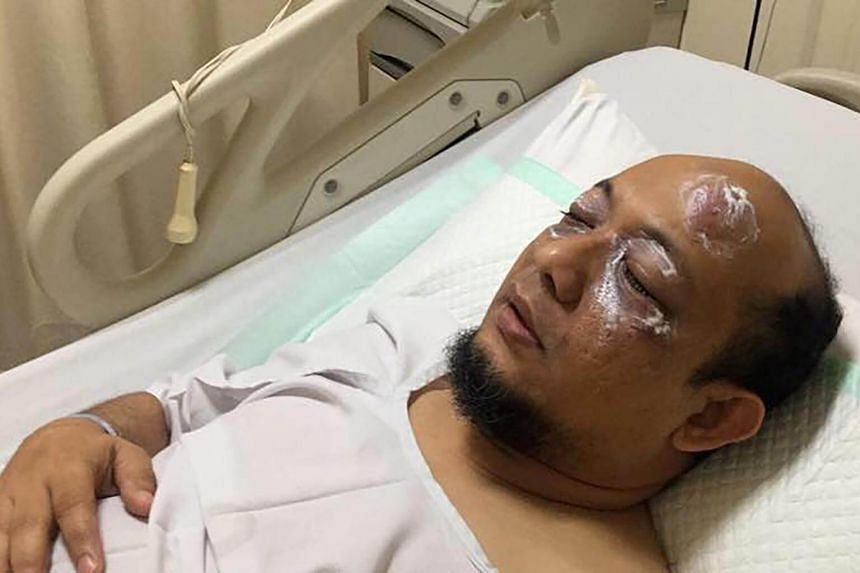 Indonesian corruption investigator Novel Baswedan lying in hospital after suffering an acid attack, in Jakarta on April 11, 2017.