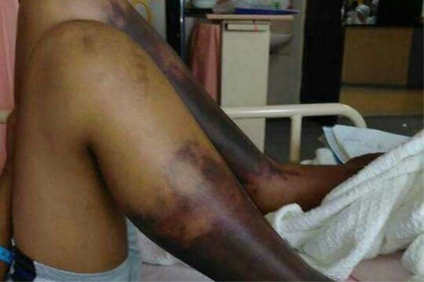 The condition of the boy's legs before the operation.