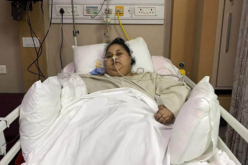 Egyptian woman Eman Ahmed Abd El Aty lying in a hospital bed after an operation, at the Saifee Hospital in Mumbai on March 8, 2017.