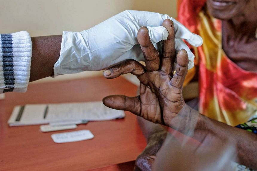 An elderly woman gets tested for Malaria at a health centre in eastern Uganda, on April 7, 2017.