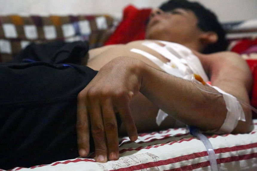 An injured man lies on a bed at a hospital in Syria's northeastern city of Hassakeh, on May 2, 2017.
