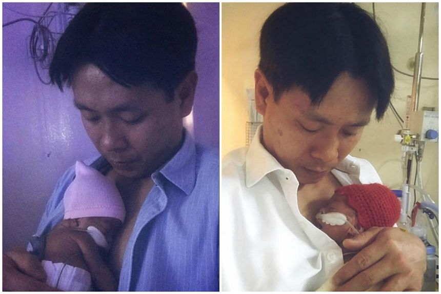 Louis Ng's skin-to-skin care with Poppy (Left) and Katie after the twins were out of the incubators.
