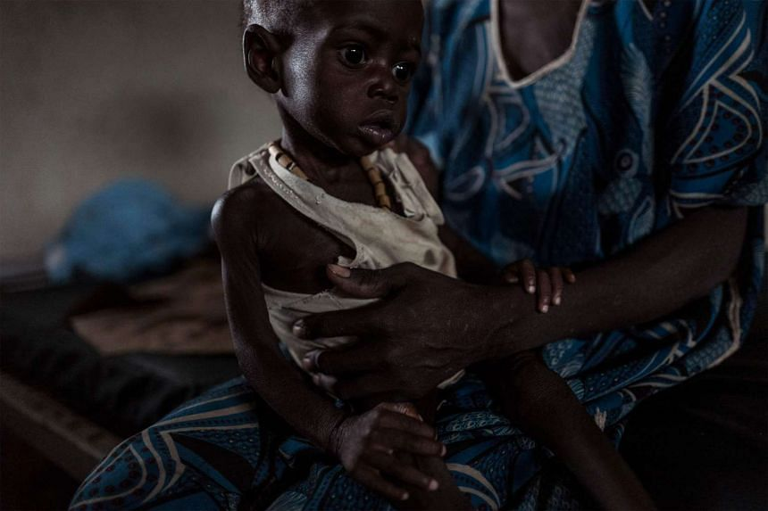 Adut Dut, a South Sudanese boy suffering from malnutrition, sits on his mother's lap at the stabilisation unit of the Civil Hospital in Tonj on May 5, 2017.
