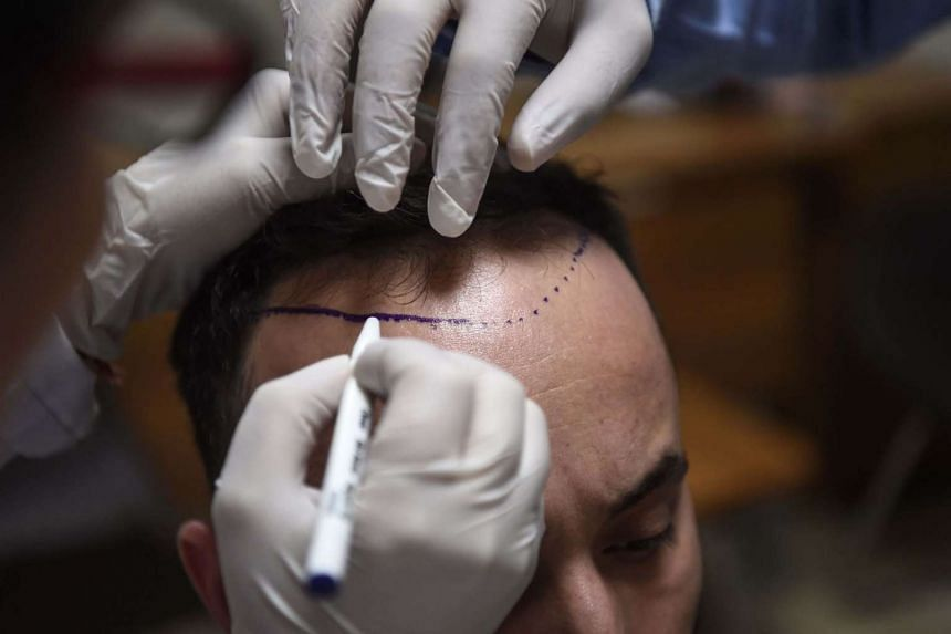 A hair specialist checks a patient in Istanbul on April 27, 2017.